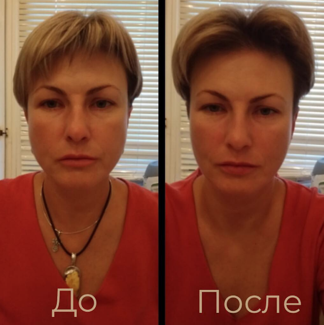 Результат буккального массажа 3 процедур